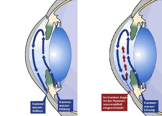 glaukom1